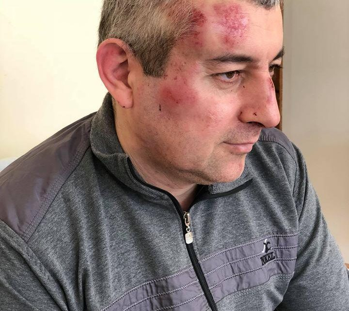Russia: Activist Attacked in Dagestan Ongoing Violent Harassment of Leading Rights Group
